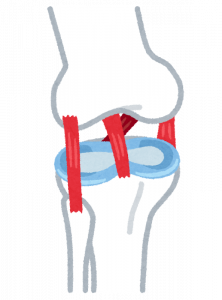 膝痛 イラスト