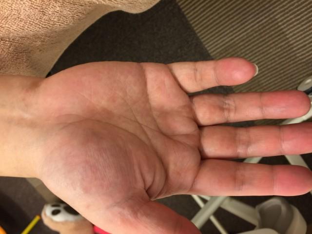 アトピー性皮膚炎 手 after